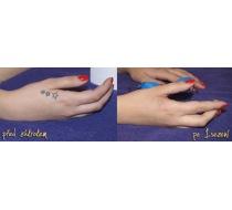 Odstranění tetování 3